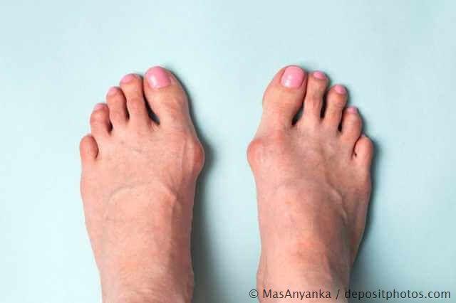 Gut sichtbarer Hallux valgus an beiden Füßen (Ballenzehen)